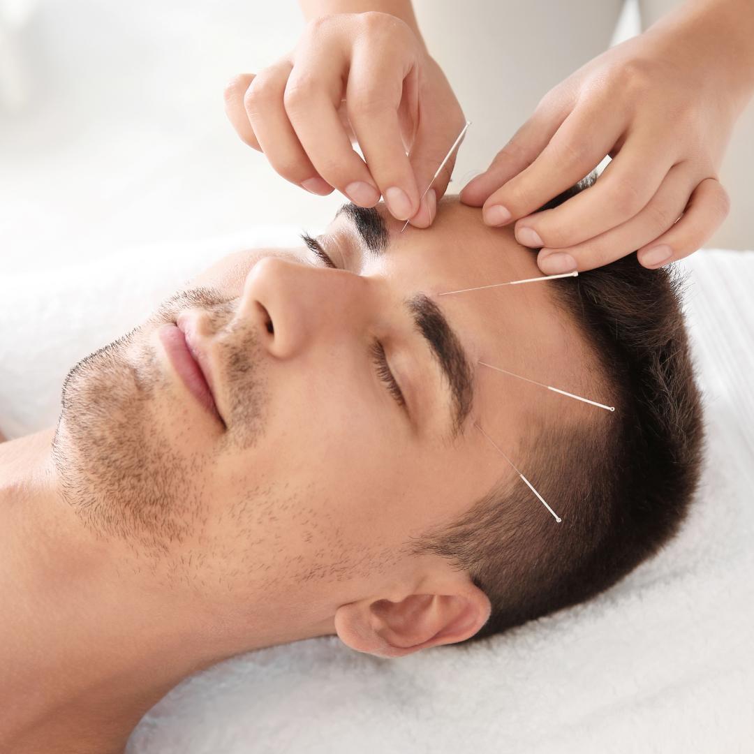 Kinų akupunktūra | Marcinkevičiaus akupunktūros klinika